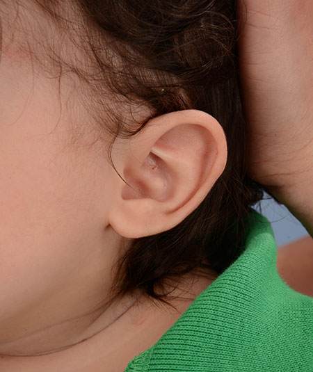 Baby's ear after undergoing ear molding treatment for a Helical rim deformity