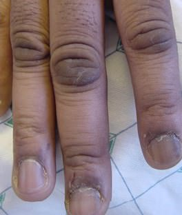 Child fingers with acanthosis nigricans