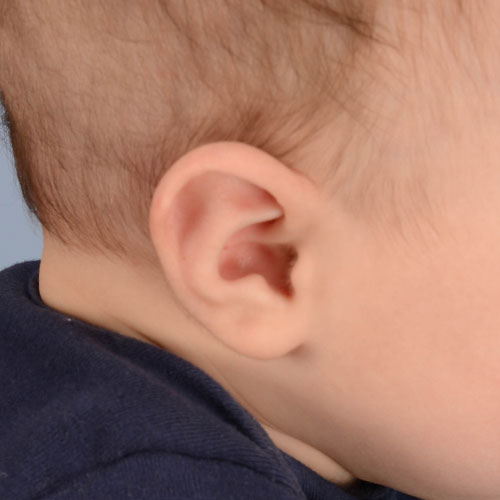 Baby with Stahl's ear before getting ear molding treatment