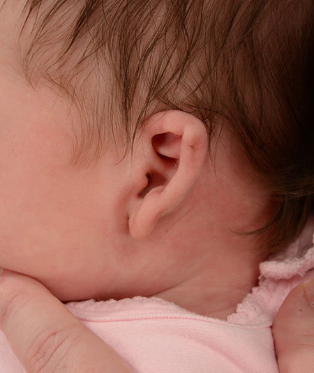 baby with constricted ear before ear molding treatment
