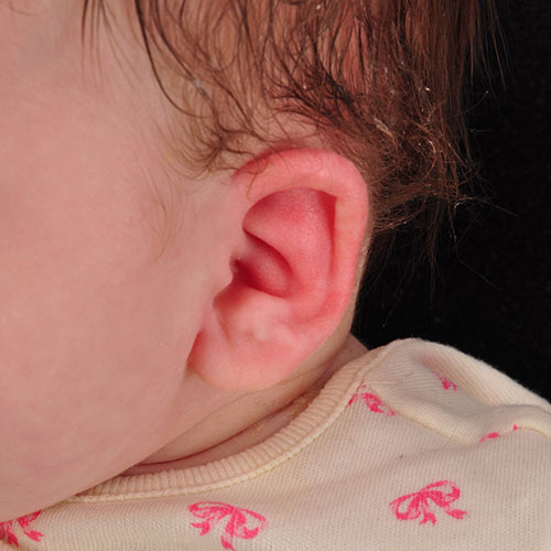 Baby's ear after undergoing ear molding treatment for constricted ear