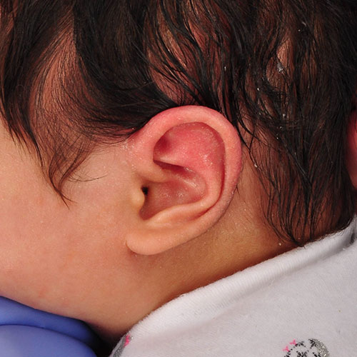 baby after ear molding treatment for helical kinking