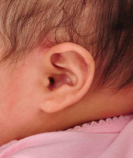 infant's ear after ear molding