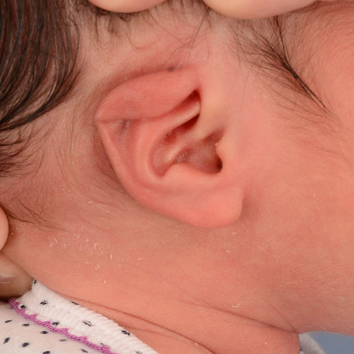 infant's ear before undergoing ear molding and reconstruction