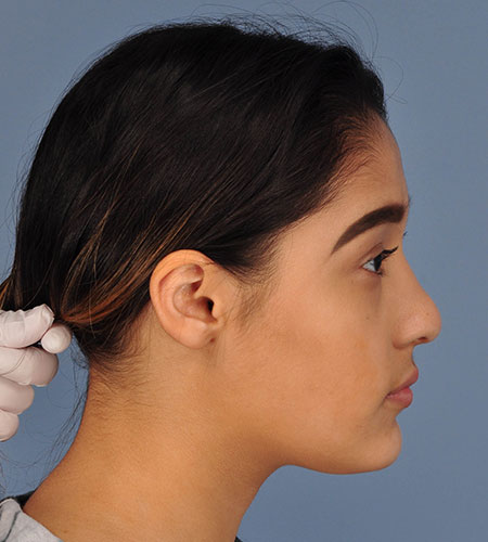 girl after rhinoplasty after nasal trauma