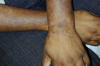 Arms with Mycosis Fungoides