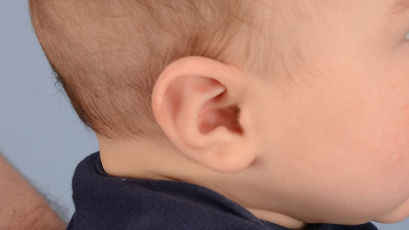 baby with stahl's ear after treatment with ear molding