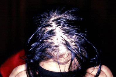 scalp with telogen effluvium