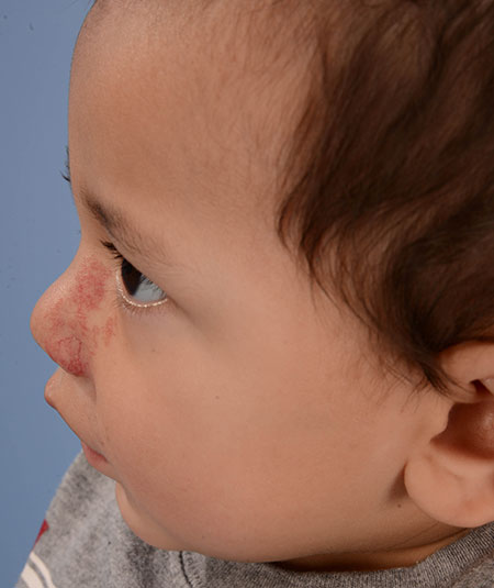 after photo of boy with nasal hemangioma removed