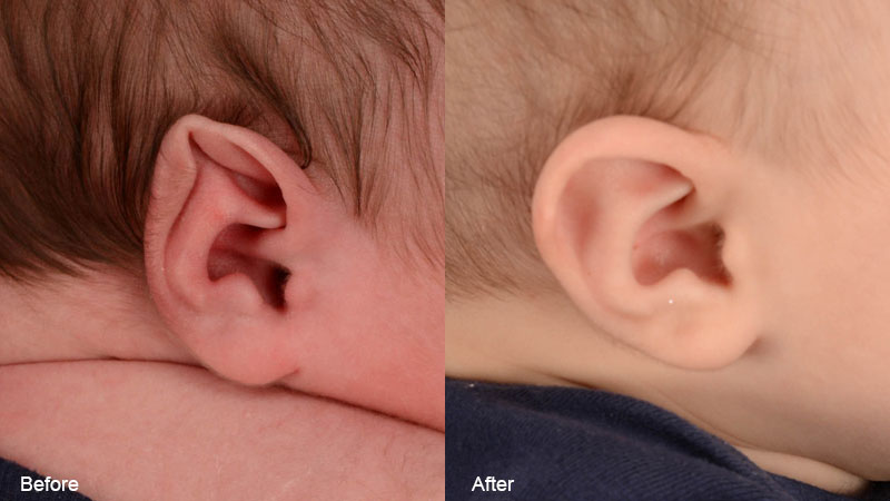 A baby's ear before and after stahl's ear treatment with ear molding