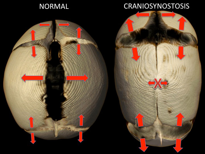 pictures of a normal skull and one with craniosynostosis