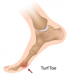 "The symptoms of turf toe can include pain in the toe joint, swelling or a ""popping"" sound when the toe is flexed."