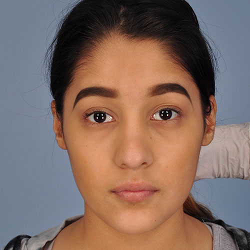 girl after rhinoplasty to correct nasal trauma