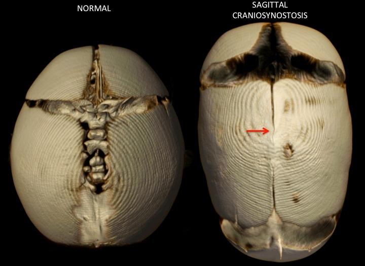 sagittal suture fusion - 720×525