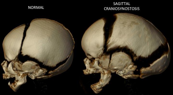 Pediatric Sagittal Synostosis