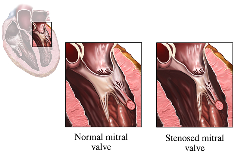 mitral stenosis showing normal mitral valve and stenosed mitral valve in the heart