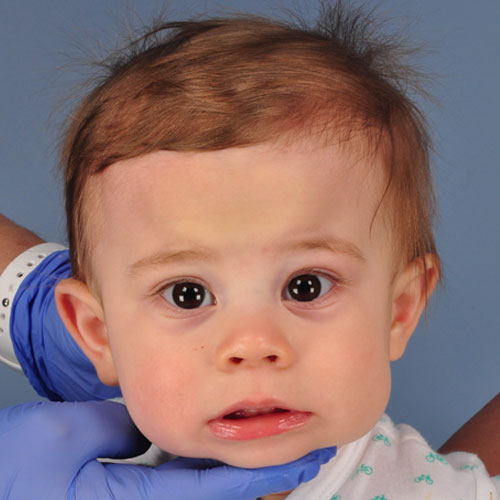 baby with metopic craniosynostosis before strip craniectomy