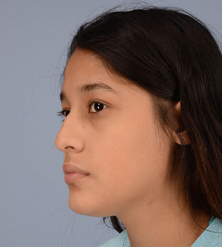 girl before rhinoplasty after nasal trauma