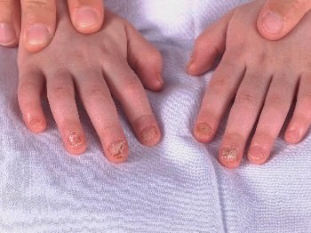 child fingers with twenty nail dystrophy