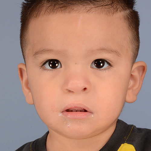 after photo of a child treated for cleft lip