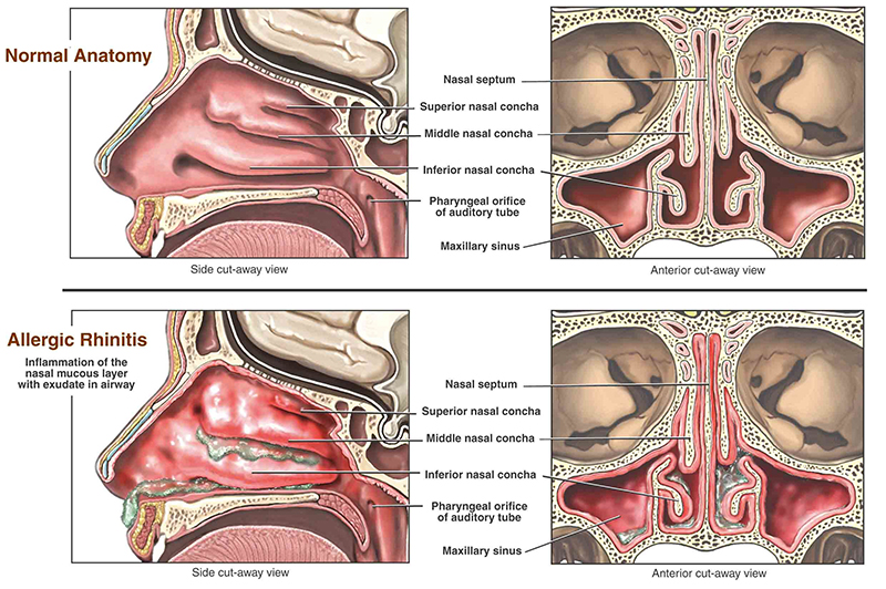 allergic rhinitis illustration of inside the nasal cavity