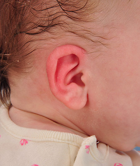 baby after ear molding treatment for constricted ear