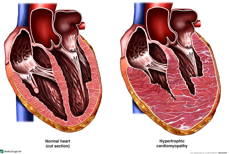 a normal heart compared to a heart with hypertrophic cardiomyopathy