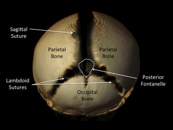 pediatric craniosynostosis