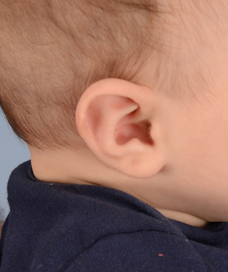 baby's ear after undergoing ear molding treatment for Stahl's ear