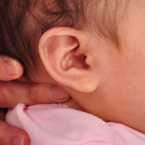 infant's ear after undergoing ear molding and reconstruction