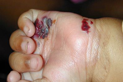 Infant hand with epidermolysis bullosa