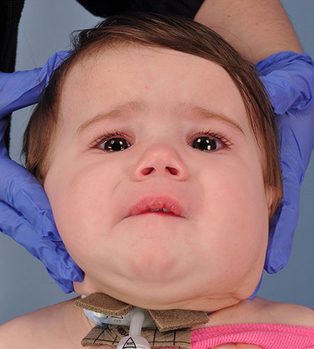 after venolymphatic malformation removal from infant