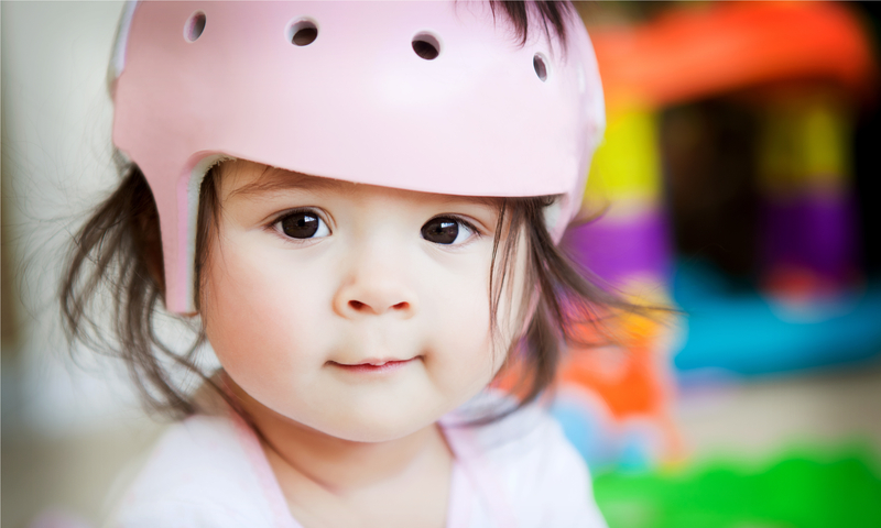 Infant girl with an orthopedic helmet smiles for the camera